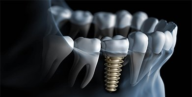 implants, which is the best dental clinic in Chennai.